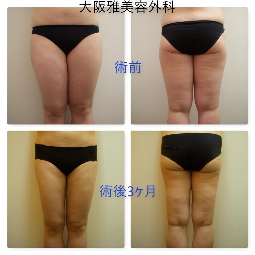 吸引 ブログ 脂肪